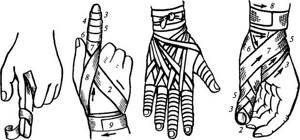 Фиксирующая повязка на руку: при переломе, как сделать, наложение