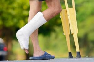 Реабилитация после перелома лодыжки: восстановление, без смещения, со смещением