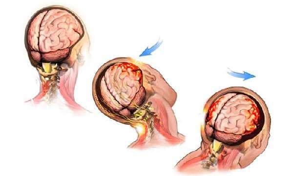 Легкое сотрясение мозга: симптомы и признаки, лечение