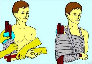 Перелом плечевой кости: иммобилизация, фиксация