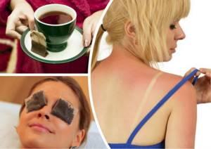 Солнечный ожог: лечение, первая помощь, эффективные средства