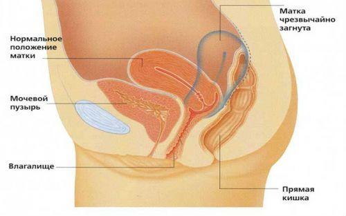 Тянущая боль внизу живота: у женщин и мужчин, причины