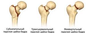 Перелом бедренной кости: в пожилом возрасте, сроки восстановления