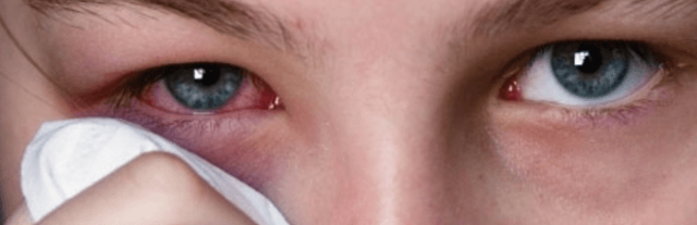Опух глаз нижнее веко и болит: припух внизу, отекло
