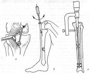 Интрамедуллярный остеосинтез: виды, по Веберу и Макиенко