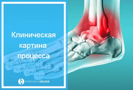 Перелом лодыжки: сколько ходить в гипсе, как долго заживает, без смещения