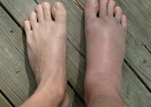 Растяжение связок стопы: симптомы и лечение