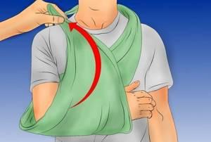Перелом предплечья со смещением: как наложить шину