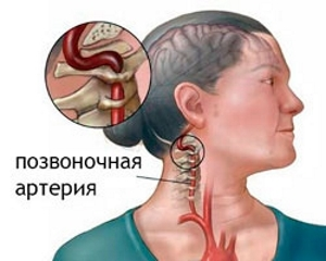 Грыжа позвоночника: симптомы и лечение, без операции