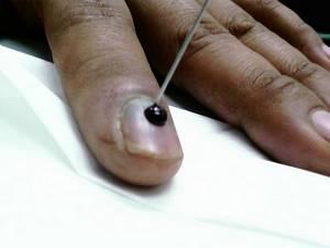 Синяк под ногтем большого пальца ноги: как лечить, избавиться