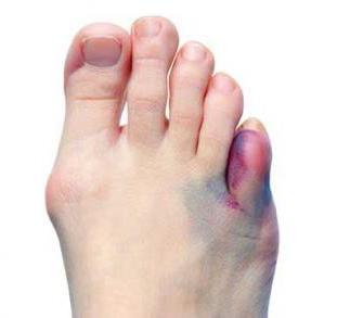Гипс на мизинец ноги: нужен ли, при переломе