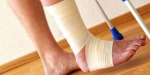 Боль в голеностопном суставе: причины и лечение, как снять