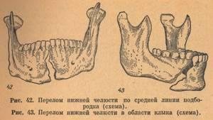 Перелом нижней челюсти: лечение, классификация, виды