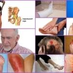 Немеют конечности: причины и лечение, почему онемели