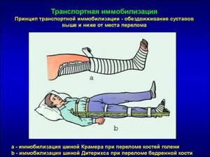 Наложение шины при переломе бедренной кости: правила, транспортной