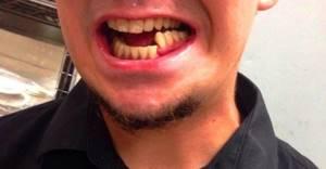 Операции при переломе челюсти: реабилитация, вмешательство
