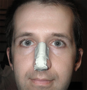 Перелом носа без смещения: костей, спинки, последствия