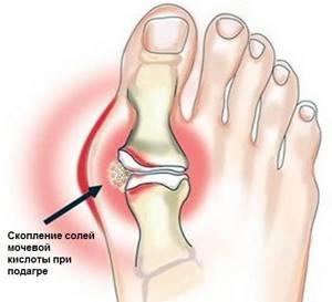 Болят пальцы на ногах: причины, как лечить, что делать