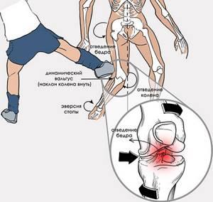 Повреждение связок коленного сустава: сроки восстановления