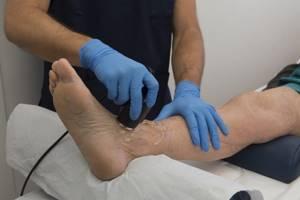 Отек голеностопного сустава: причины и лечение