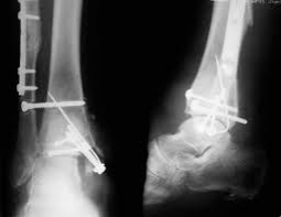 Снятие пластины после перелома лодыжки: удаление металлоконструкции, спицы