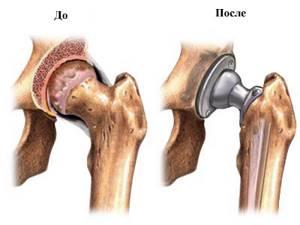 Проведение эндопротезирования тазобедренного сустава в
