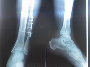 Перелом большой берцовой кости без смещения: сколько ходить в гипсе
