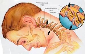 Головные боли при остеохондрозе шейного отдела: болит голова