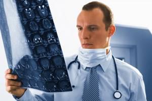 Как болит голова при опухоли головного мозга: у взрослых