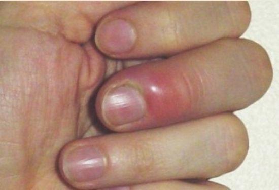 Болят кончики пальцев на руках: подушечки, причины