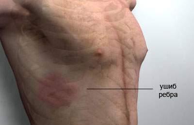 Мазь от ушиба ребер: обезболивающая, крем, при сильном