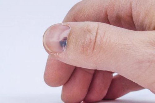 Сильный ушиб пальца на руке: чем мазать, мазь