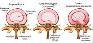 Межпозвоночная грыжа поясничного отдела: симптомы и лечение