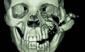 Сочетанная травма: комбинированная, скелета, головы