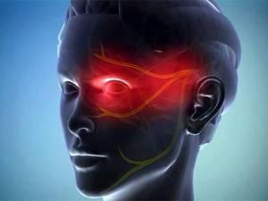 Кластерная головная боль: причины и лечение, симптомы