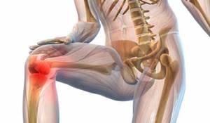 Хондропротекторы при артрозе коленного сустава: коксартрозе