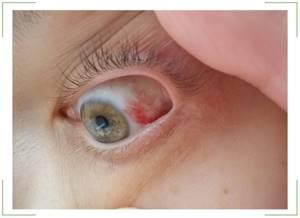 Красные глаза и болят: причины, покраснел один, что делать