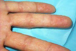Водянистые пузырьки на пальцах рук: мелкие, лечение, как лечить