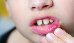 Пузырек на губе: внутри появился водяной пузырь, вскочил