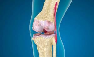 Импрессионный перелом мыщелка бедренной кости: латерального