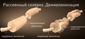 Немеют кончики пальцев на руках: причины, что делать, онемели