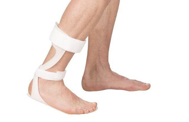 Сколько проходит растяжение связок голеностопа: можно ли ходить