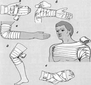Повязки на голову при травме: как перевязать