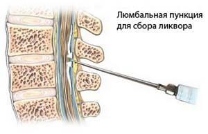 Сосудистая головная боль: болят сосуды в голове, симптомы