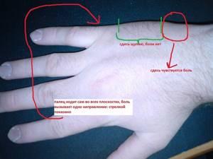Порезы на ногах: лезвием, сухожилиях, глубокий, что будет, как лечить