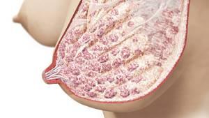 Болят соски перед месячными: причины, беременность, патология