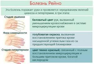 Немеют три пальца на правой руке: большой, указательный, средний