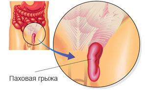 Паховая грыжа у мужчин: симптомы и лечение, без операции