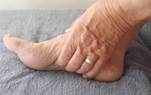 После перелома лодыжки отекает нога: что делать, как лечить