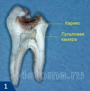 Средства от зубной боли: быстрые и эффективные, в домашних условиях